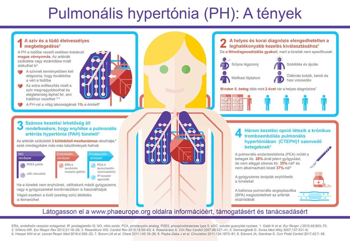 Pulmonális hypertónia (PH): A tények - Infografika